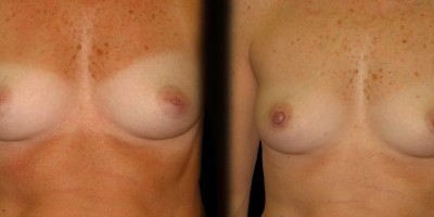 Patient-1-Inverted-Nipples-(3)