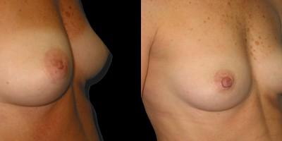 Patient-1-Inverted-Nipples-(4)