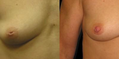 Patient-3-Inverted-Nipple-Repair-(7)