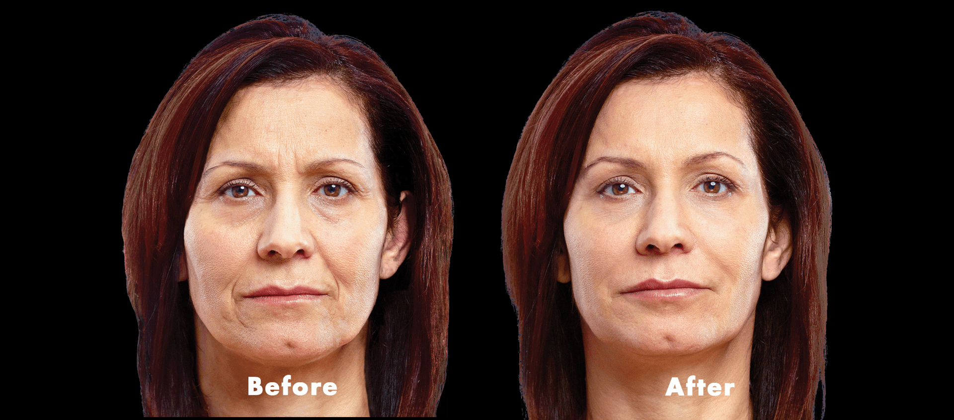 Fillers/Non Surgical Procedures