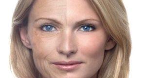 botox-face